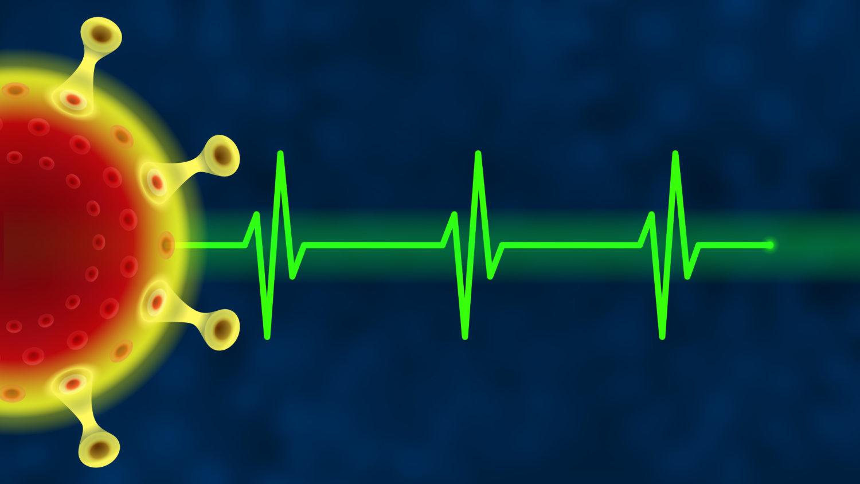 Coronavirus, green, Electrocardiogram, ECG, EKG, Health, #000113