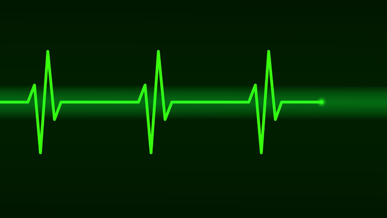 Free image from iXimus.de: Electrocardiogram, ECG, EKG, Health, green, #000151