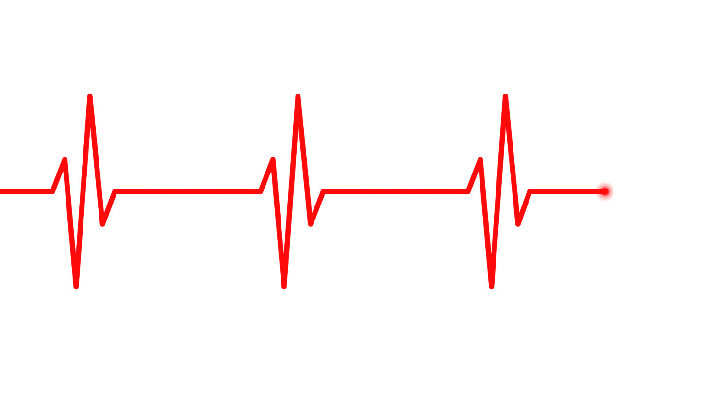 Free image from iXimus.de: Electrocardiogram, ECG, EKG, Health, red, #000152